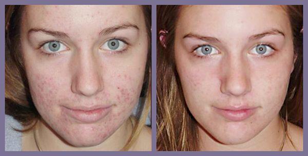 Comment faire un masque contre l'acné ?